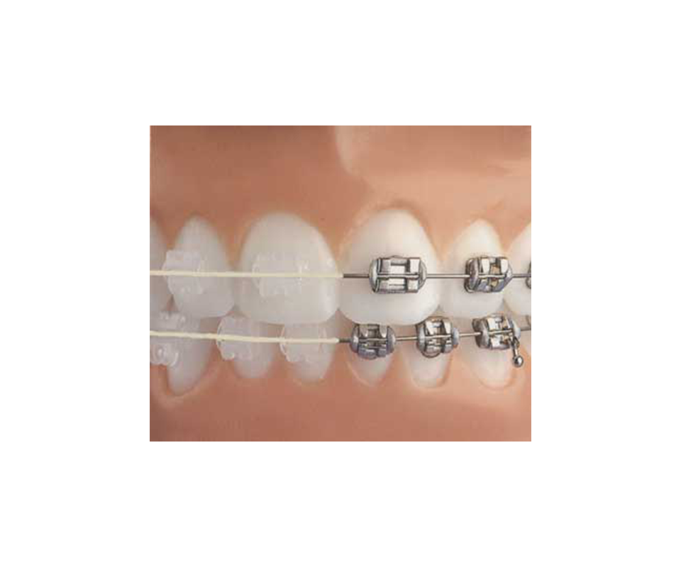 ceramic braces compared to metal braces