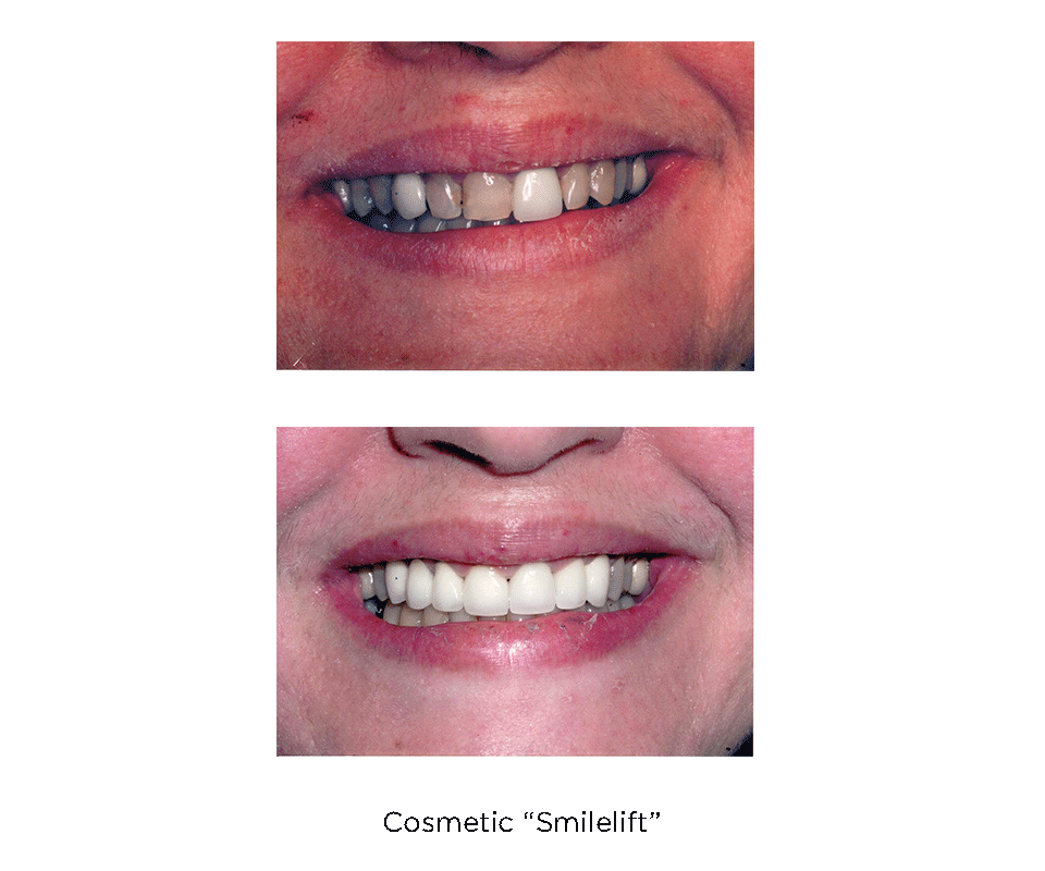 Cosmetic Smilelift