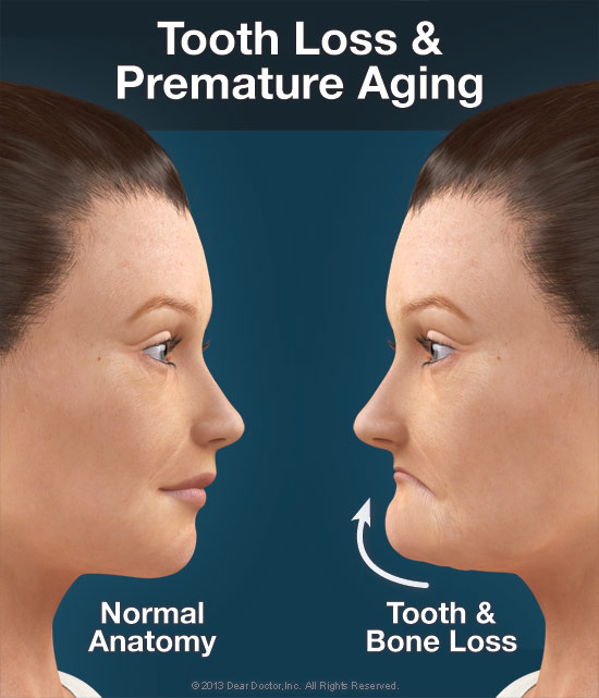 dental implants can help prevent pre mature aging due to tooth loss