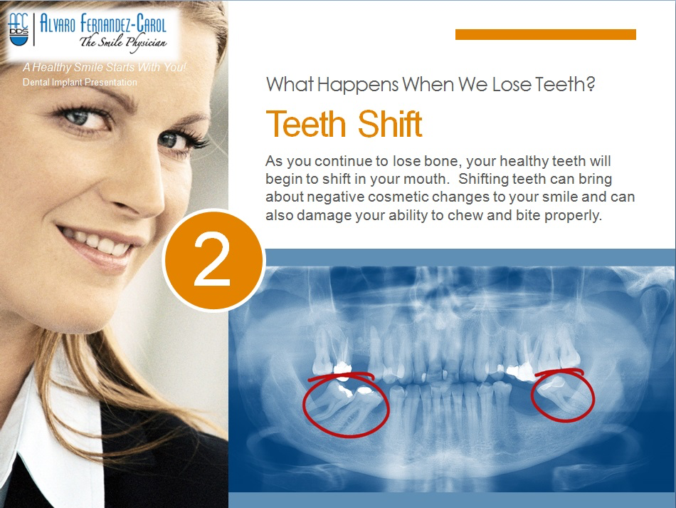 dental implants prevent teeth shift