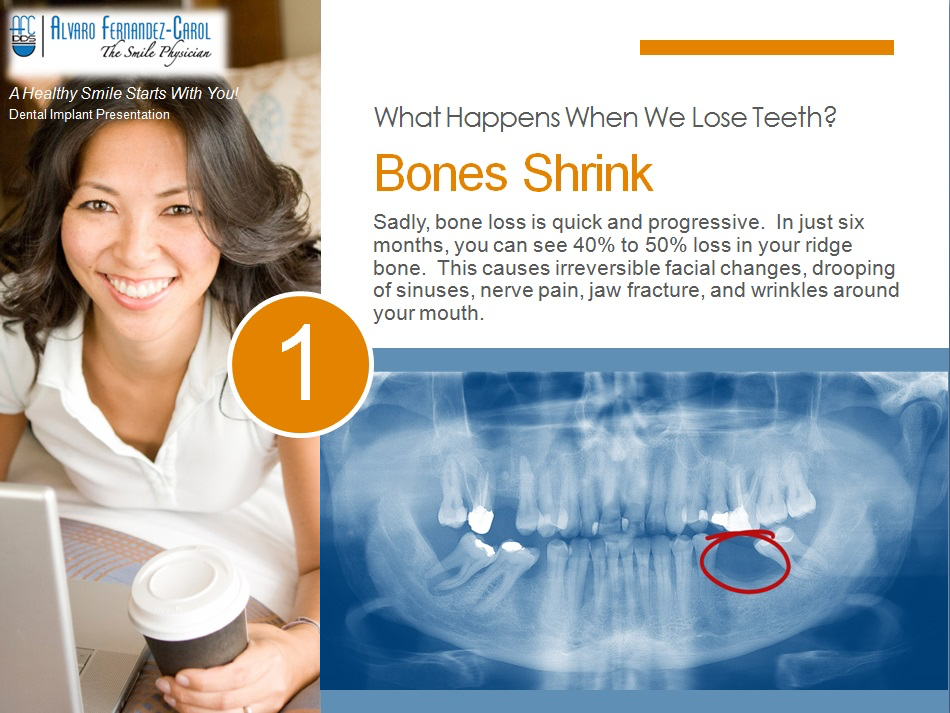 dental implants prevent bone shrink