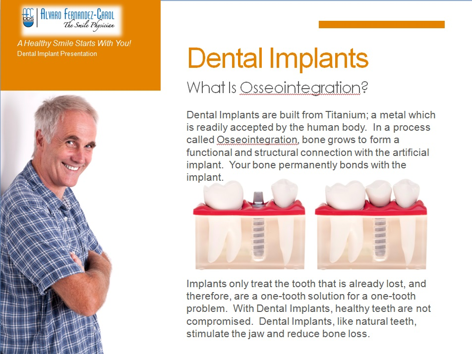 dental implants what is osseointegration
