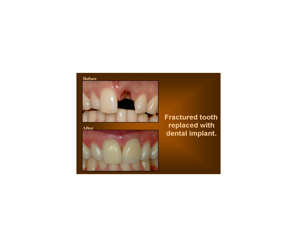 replacing a fractured tooth with dental implant