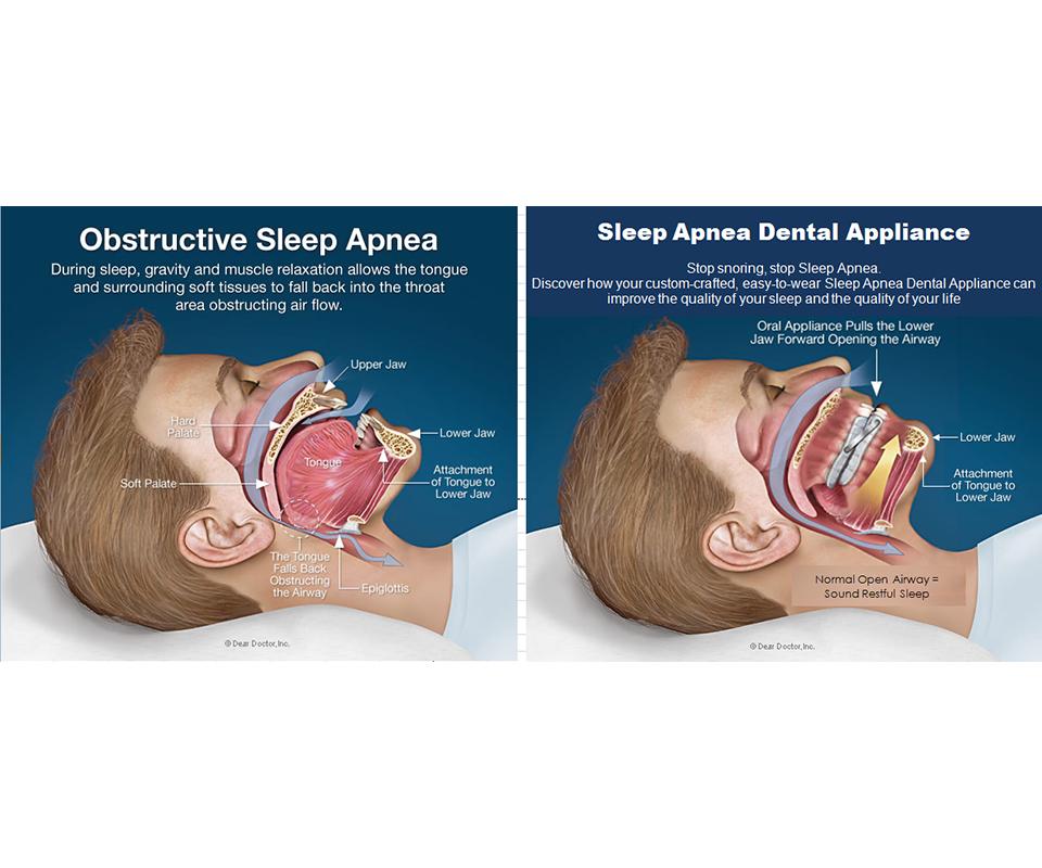 Sleep Apnea and Snoring   Miami Cosmetic Dentistry   The Smile ...